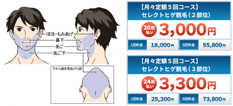 MEN'S RIZE(メンズリゼ)なら分割の月額3,000円でヒゲ脱毛