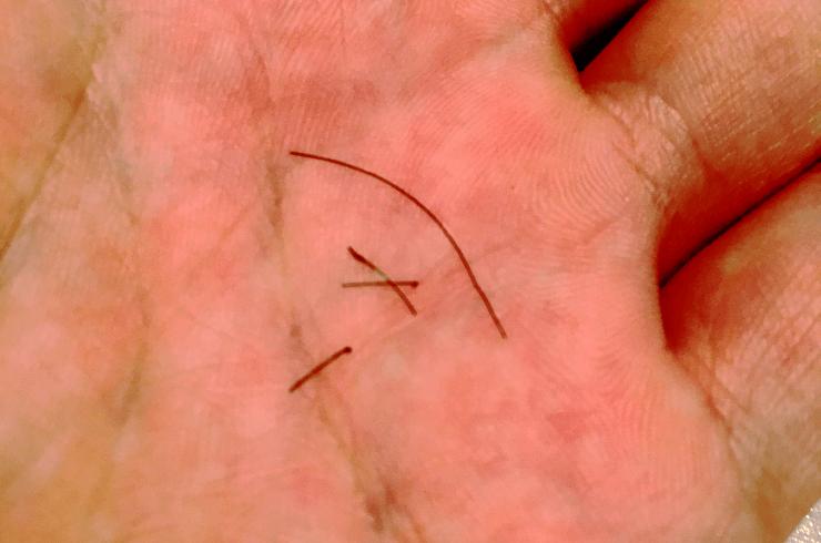 メンズTBC(メンズティービーシー)での脱毛の結果